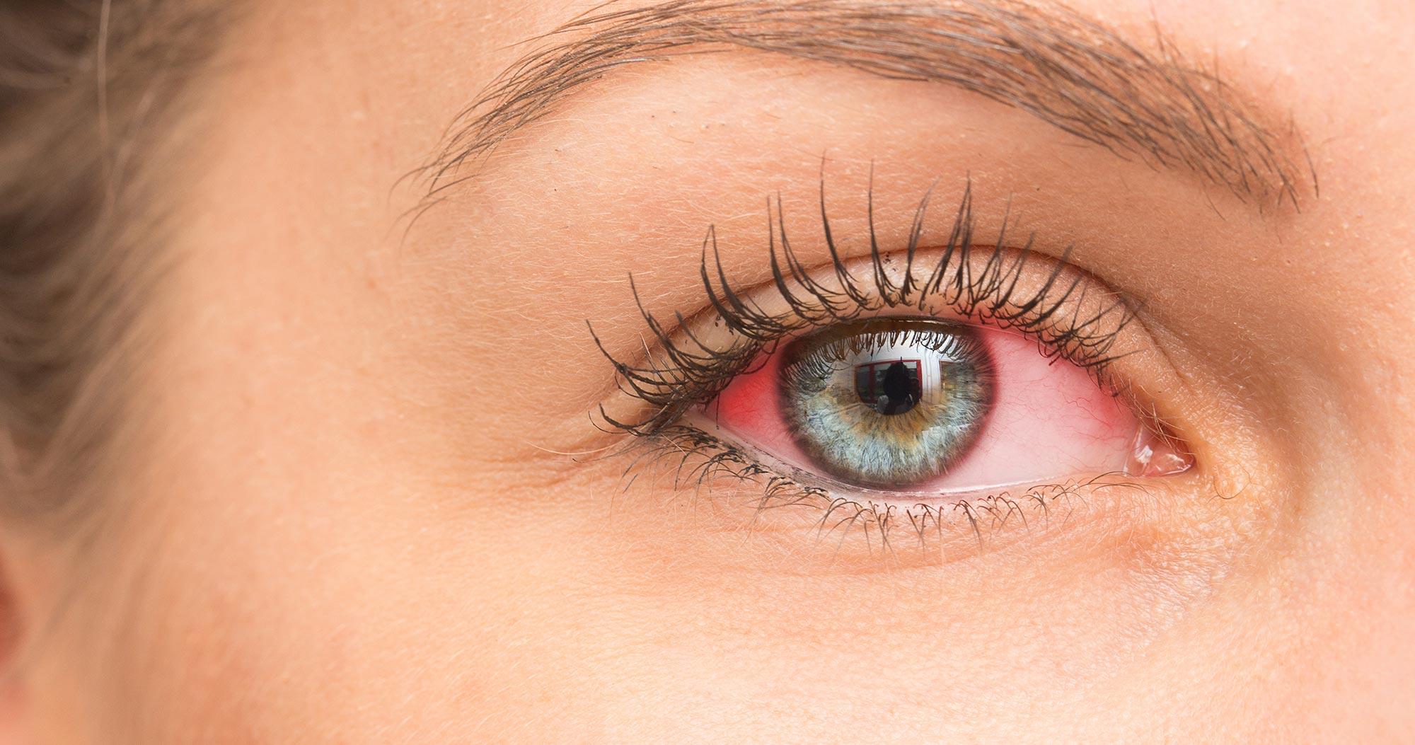 Thrive brilliant eye brightener reviews